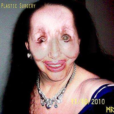 Mathieu roszak plastic surgeryfinal