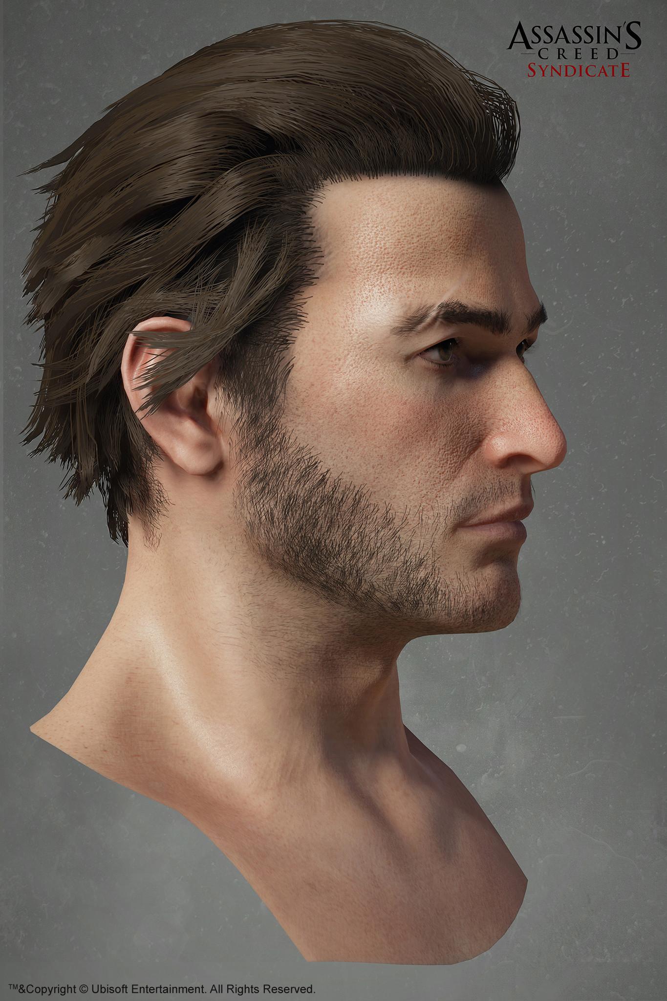 Hugues thibodeau acs jacobfrye head side