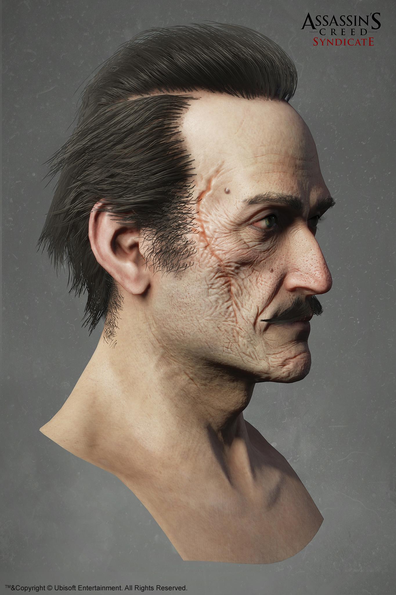 Hugues thibodeau acs maxwellroth head side